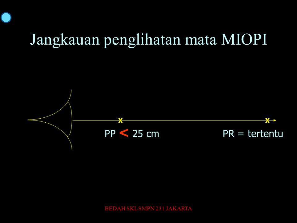 Jangkauan penglihatan mata MIOPI X PP < 25 cmPR = tertentu BEDAH SKL SMPN 231 JAKARTA37