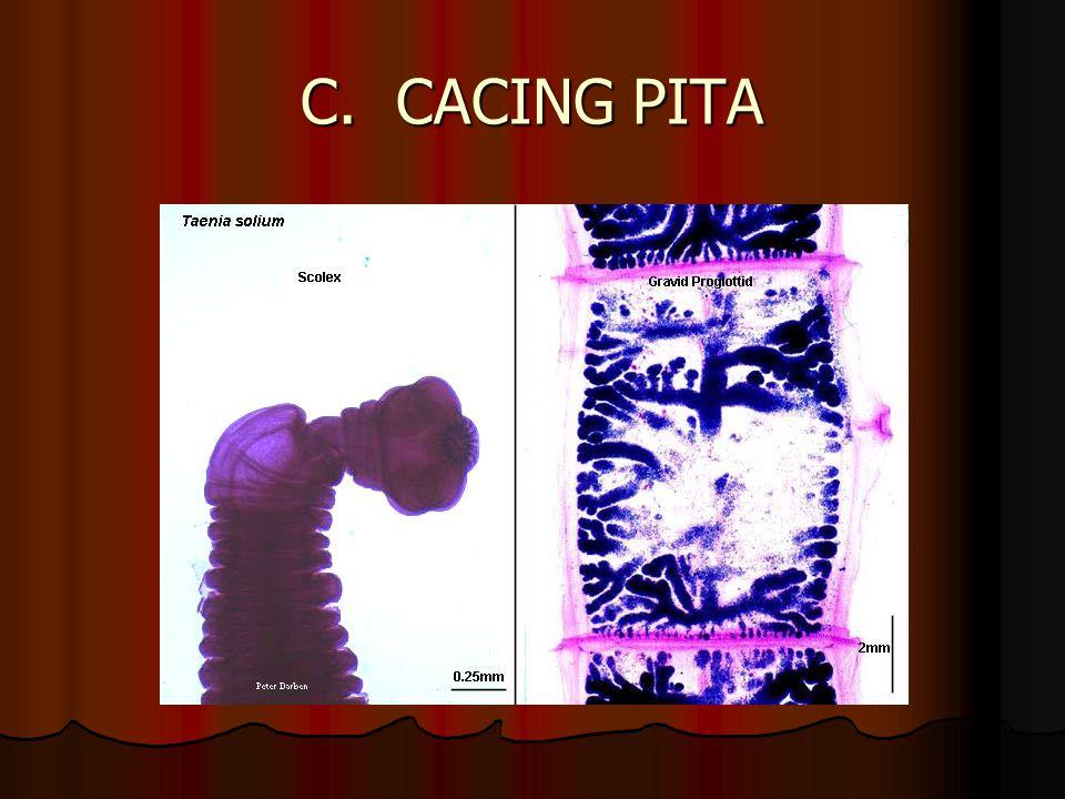 LARVA CACING HATI (kista) Larva cacing hati Larva cacing hati