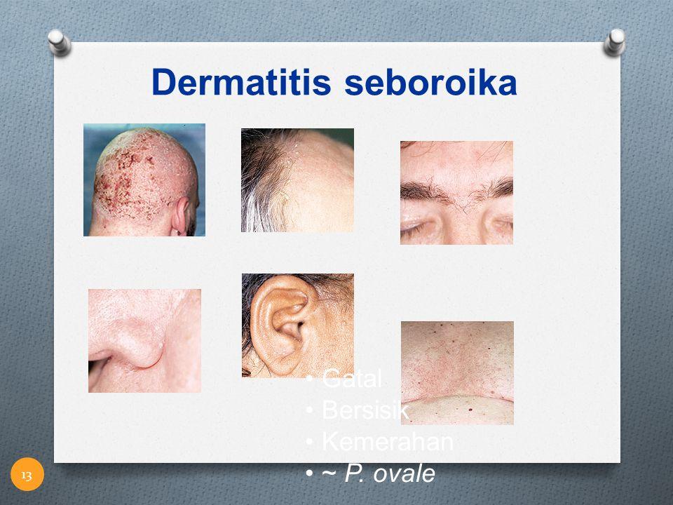 Dermatitis seboroika Gatal Bersisik Kemerahan ~ P. ovale 13