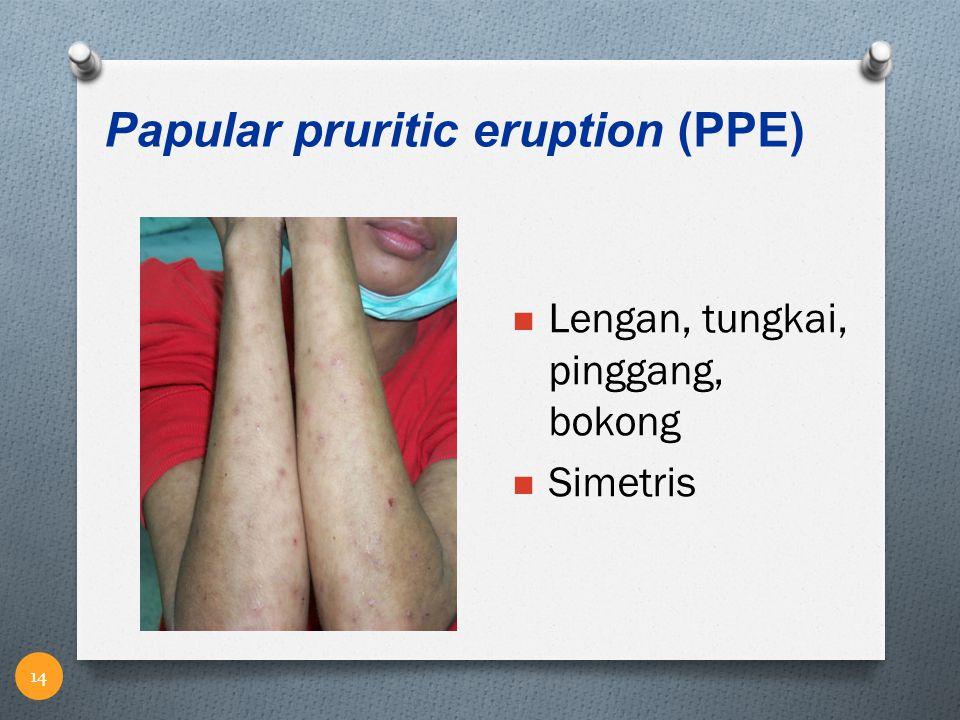 Lengan, tungkai, pinggang, bokong Simetris Papular pruritic eruption (PPE) 14