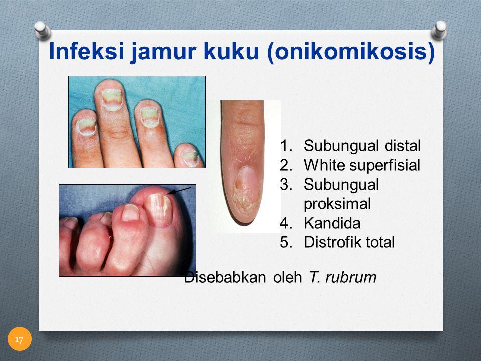Infeksi jamur kuku (onikomikosis) 1.Subungual distal 2.White superfisial 3.Subungual proksimal 4.Kandida 5.Distrofik total Disebabkan oleh T. rubrum 1