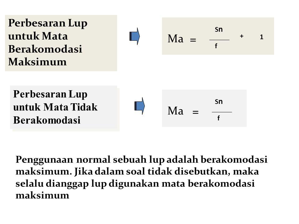 PERBESARAN LUP + M F O Perbesaran Lup untuk Mata Berakomodasi pada jarak x Ma S S'= -X SnSn f + SnSn x = Sn = titik dekat mata normal F = fokus lensa