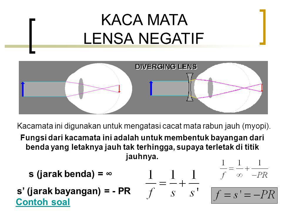 KACA MATA LENSA NEGATIF Kacamata ini digunakan untuk mengatasi cacat mata rabun jauh (myopi).