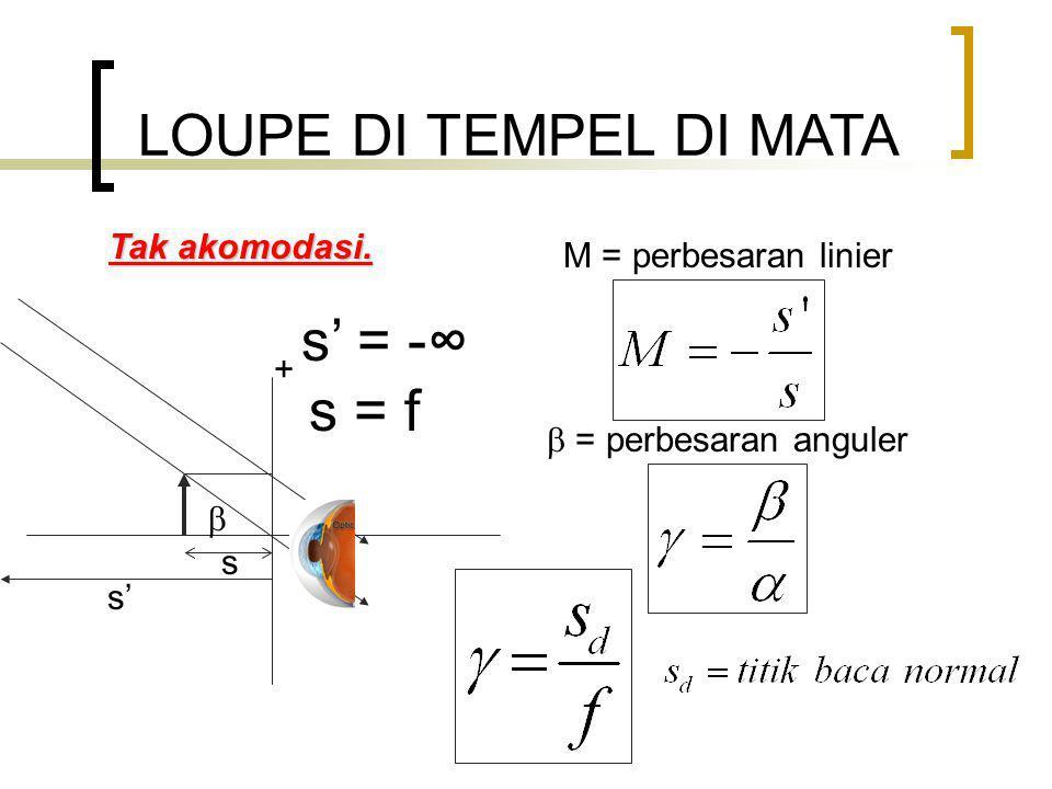 LOUPE DI TEMPEL DI MATA Tak akomodasi.
