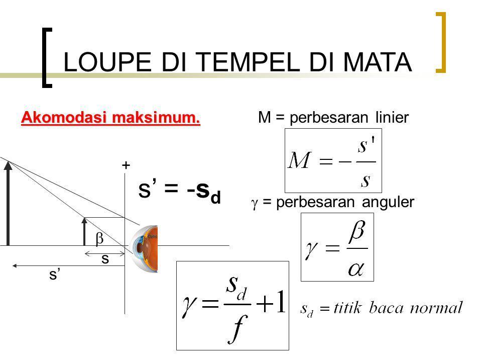 LOUPE DI TEMPEL DI MATA Akomodasi maksimum.