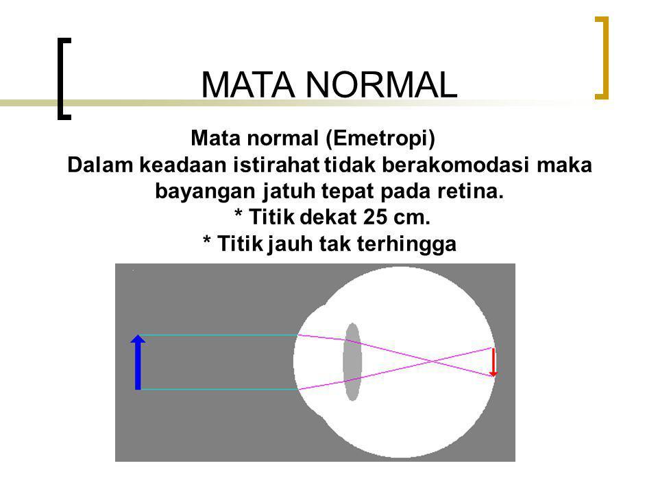 CACAT PADA MATA Mata dinyatakan cacat biasanya karena : * Berkurangnya daya akomodasi mata * Kelainan bentuk mata 1.Mata Rabun Jauh (Myopi) disebut mata dekat.Mata Rabun Jauh (Myopi) disebut mata dekat 2.