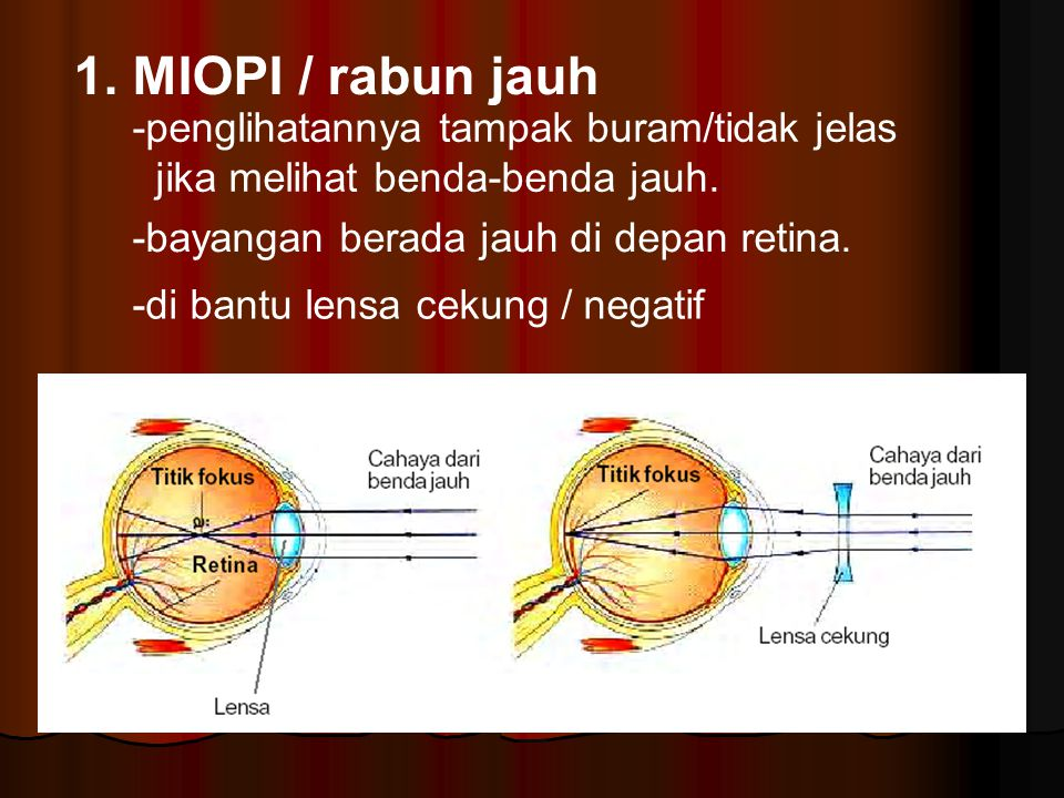 1. MIOPI / rabun jauh -penglihatannya tampak buram/tidak jelas jika melihat benda-benda jauh. -bayangan berada jauh di depan retina. -di bantu lensa c