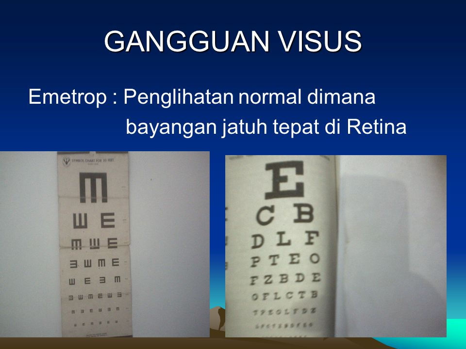 GANGGUAN VISUS Emetrop : Penglihatan normal dimana bayangan jatuh tepat di Retina