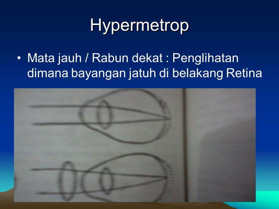 Hypermetrop Mata jauh / Rabun dekat : Penglihatan dimana bayangan jatuh di belakang Retina