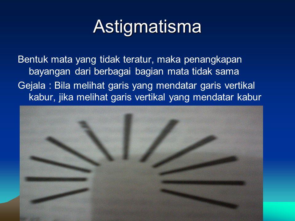Astigmatisma Bentuk mata yang tidak teratur, maka penangkapan bayangan dari berbagai bagian mata tidak sama Gejala : Bila melihat garis yang mendatar