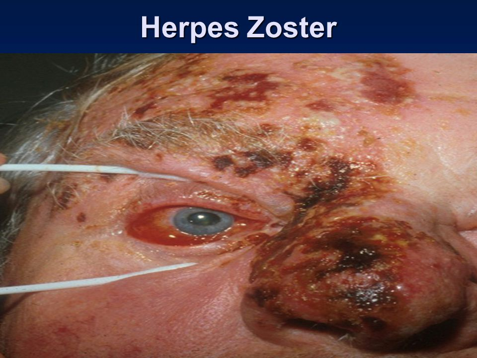 Herpes Zoster Herpes Zoster Ophthalmicus (HZO)