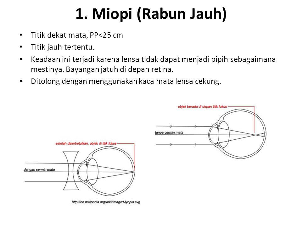 1. Miopi (Rabun Jauh) Titik dekat mata, PP<25 cm Titik jauh tertentu. Keadaan ini terjadi karena lensa tidak dapat menjadi pipih sebagaimana mestinya.