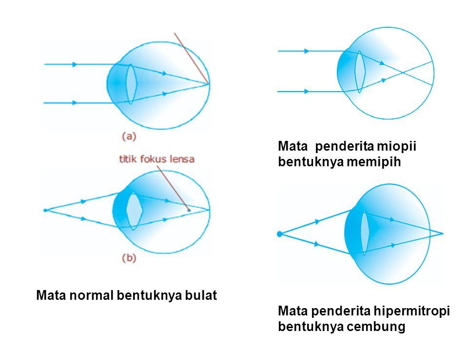 2FFO F Camera 2FFO F MATA Proses Pembiasan pada Mata dan Camera Bayangan yang terjadi: Nyata Terbalik Diperkecil
