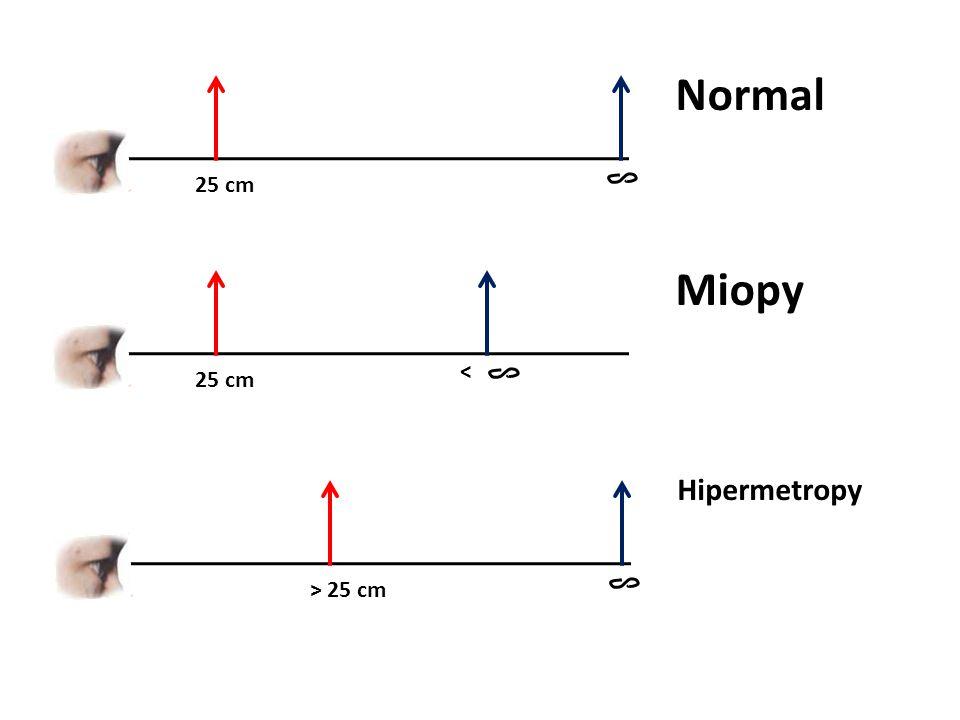 PP < 25 cm Jangkauan Penglihatan PR tertentu kekuatan lensa Persamaan untuk meng hitung kuat lensa yang diperlukan P = 1 f 1 S + 1 S' = 1 f S ' = - titik jauh penderita f = jarak fokus (m) P = kuat lensa (dioptri