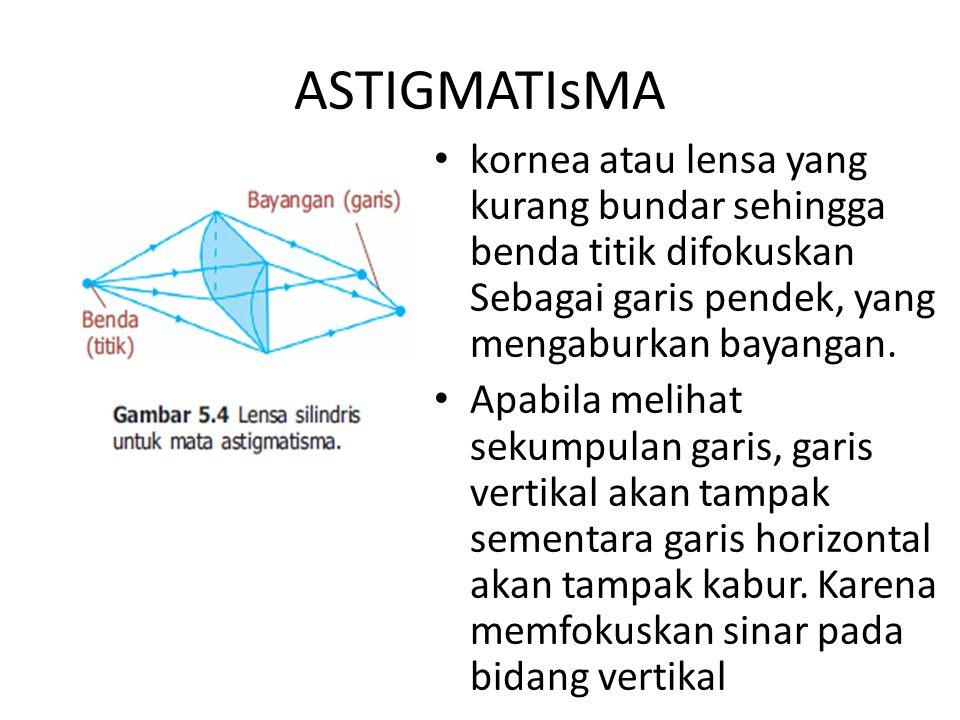 1/s + 1/s' = 1/f Hipermetropi: Setelah memakai kacamata maka, s = 25 cm dan s' dalam contoh di atas = -50 cm 1/ - 1/100 = 1/f f = -100 cm = - 1 mP = 1/f = - 1/1 = -1 dioptri 1/s + 1/s' = 1/f1/25 - 1/50 = 1/f 2/50 - 1/50 = 1/f 1/50 = 1/f f = 50 cm P = 1/f = 1/0,5 = 2 dioptri