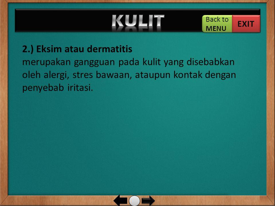 2.) Eksim atau dermatitis merupakan gangguan pada kulit yang disebabkan oleh alergi, stres bawaan, ataupun kontak dengan penyebab iritasi. Back to MEN