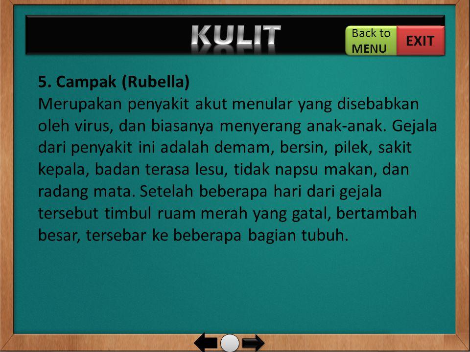 5. Campak (Rubella) Merupakan penyakit akut menular yang disebabkan oleh virus, dan biasanya menyerang anak-anak. Gejala dari penyakit ini adalah dema