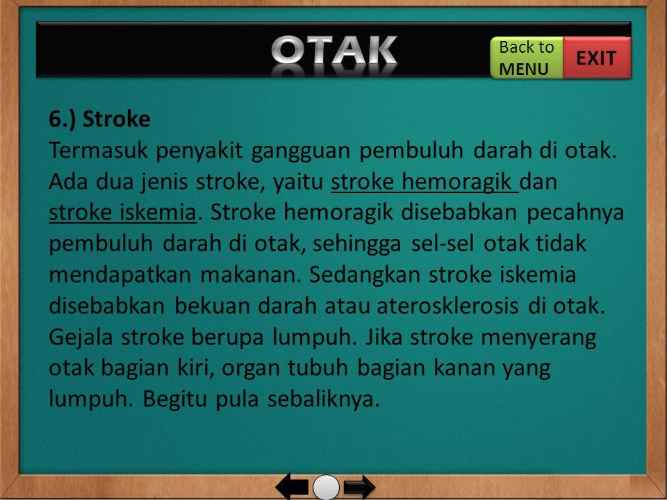 6.) Stroke Termasuk penyakit gangguan pembuluh darah di otak. Ada dua jenis stroke, yaitu stroke hemoragik dan stroke iskemia. Stroke hemoragik diseba