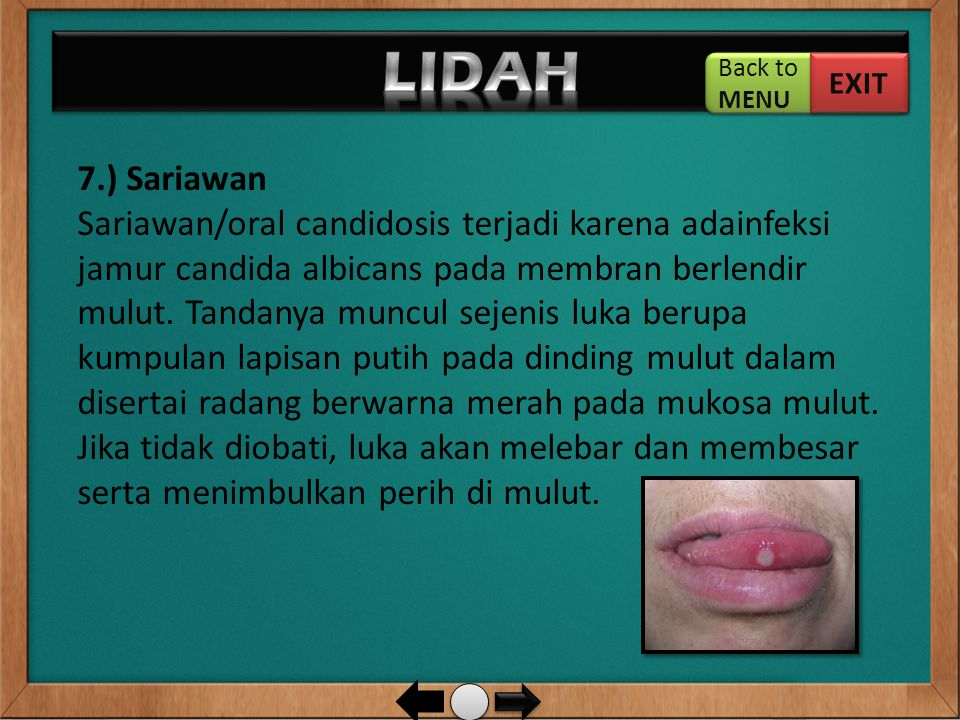 7.) Sariawan Sariawan/oral candidosis terjadi karena adainfeksi jamur candida albicans pada membran berlendir mulut. Tandanya muncul sejenis luka beru