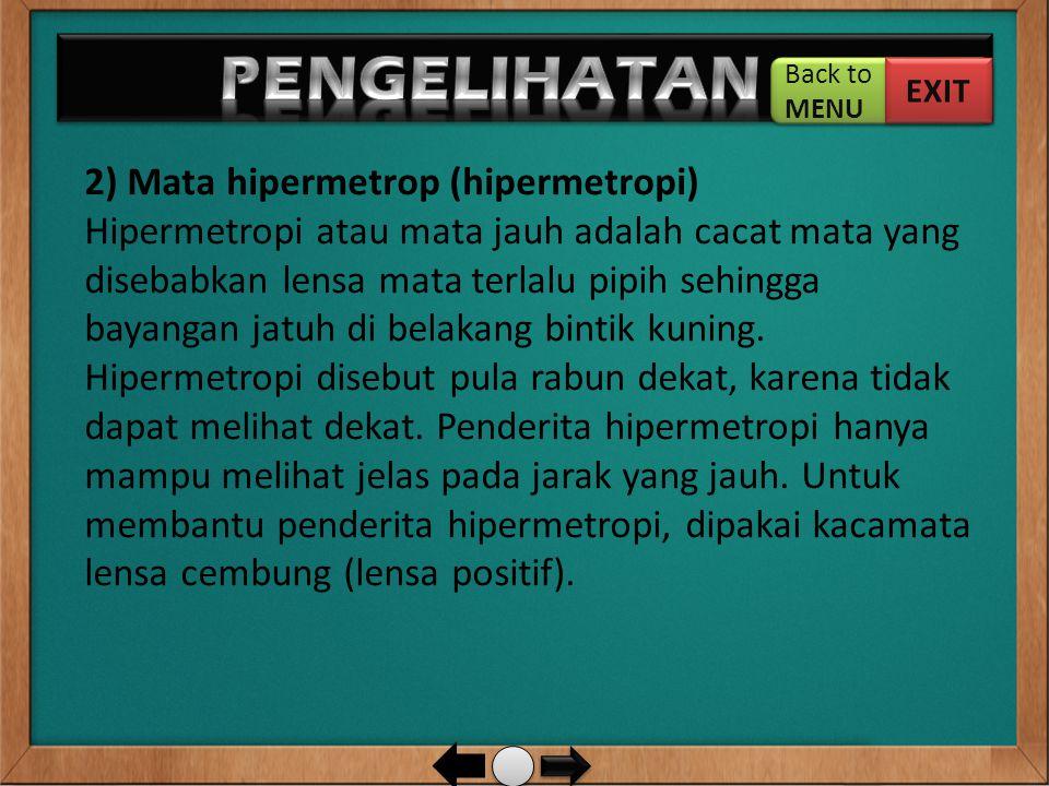 3) Mata presbiop (presbiopi) Presbiopi umumnya terjadi pada orang berusia lanjut.