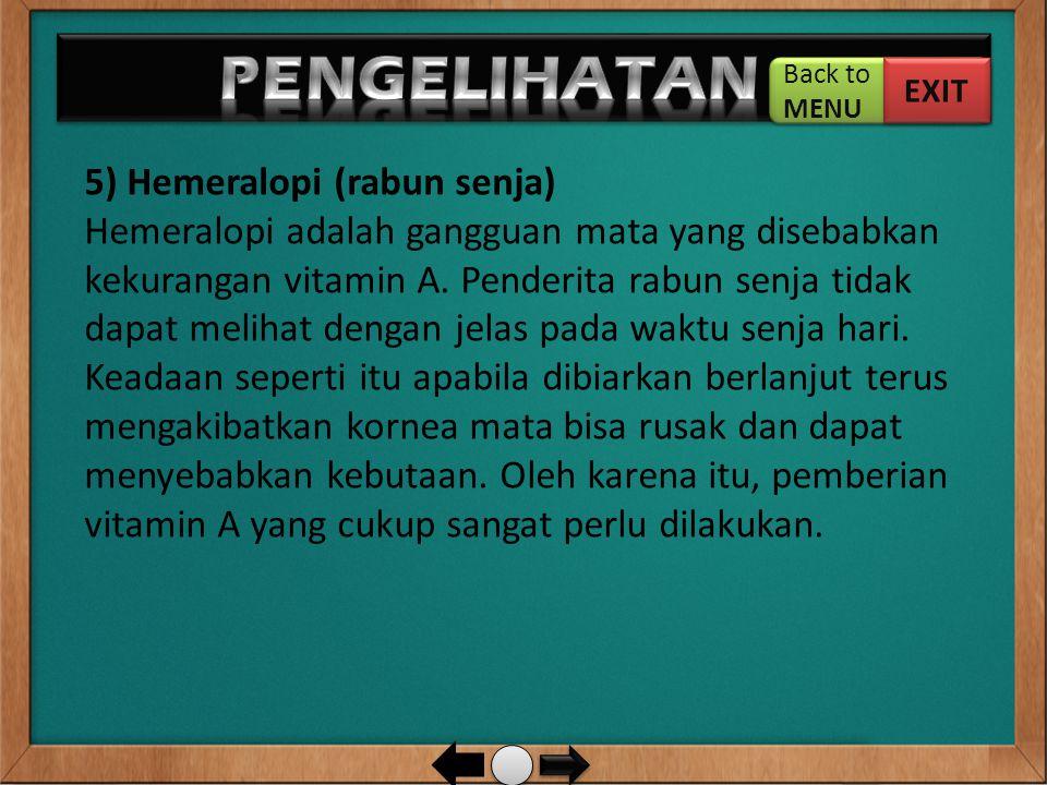 5) Hemeralopi (rabun senja) Hemeralopi adalah gangguan mata yang disebabkan kekurangan vitamin A. Penderita rabun senja tidak dapat melihat dengan jel