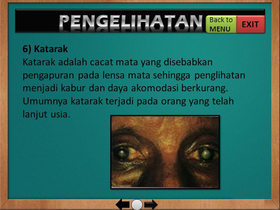 6) Katarak Katarak adalah cacat mata yang disebabkan pengapuran pada lensa mata sehingga penglihatan menjadi kabur dan daya akomodasi berkurang. Umumn