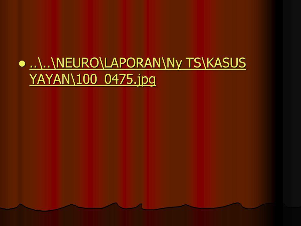 ..\..\NEURO\LAPORAN\Ny TS\KASUS YAYAN\100_0475.jpg..\..\NEURO\LAPORAN\Ny TS\KASUS YAYAN\100_0475.jpg..\..\NEURO\LAPORAN\Ny TS\KASUS YAYAN\100_0475.jpg