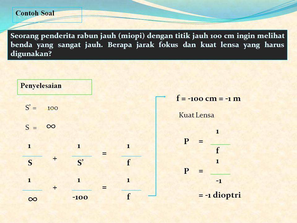 PP < 25 cm Jangkauan Penglihatan PR tertentu Persamaan untuk menghitung kuat lensa yang diperlukan P = 1 f 1 S + 1 S' = 1 f S' = - titik jauh penderit