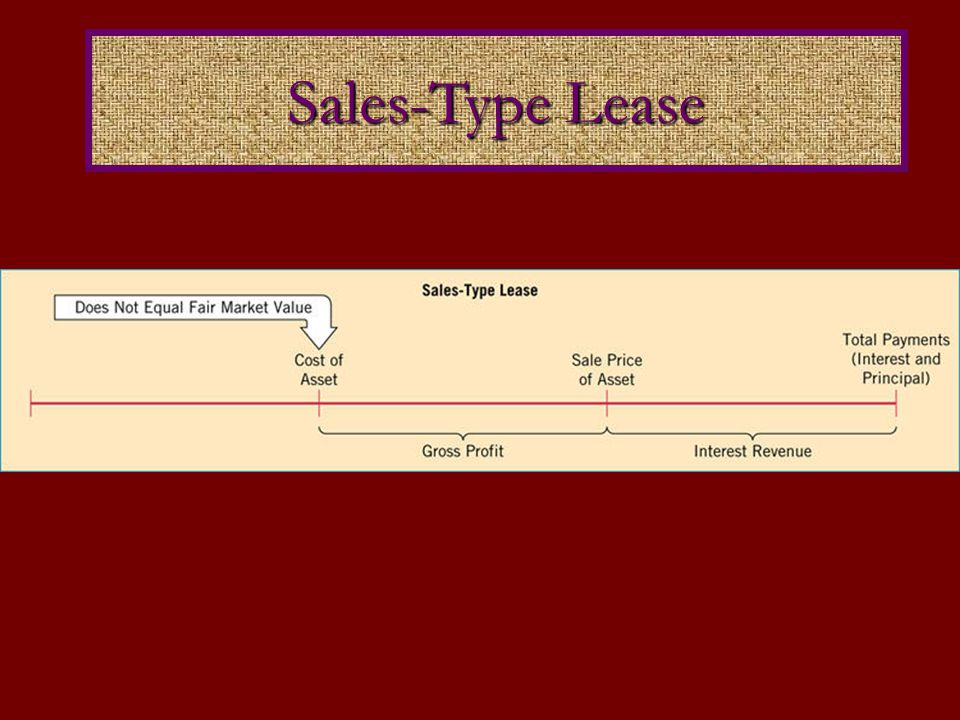 Sales-Type Lease