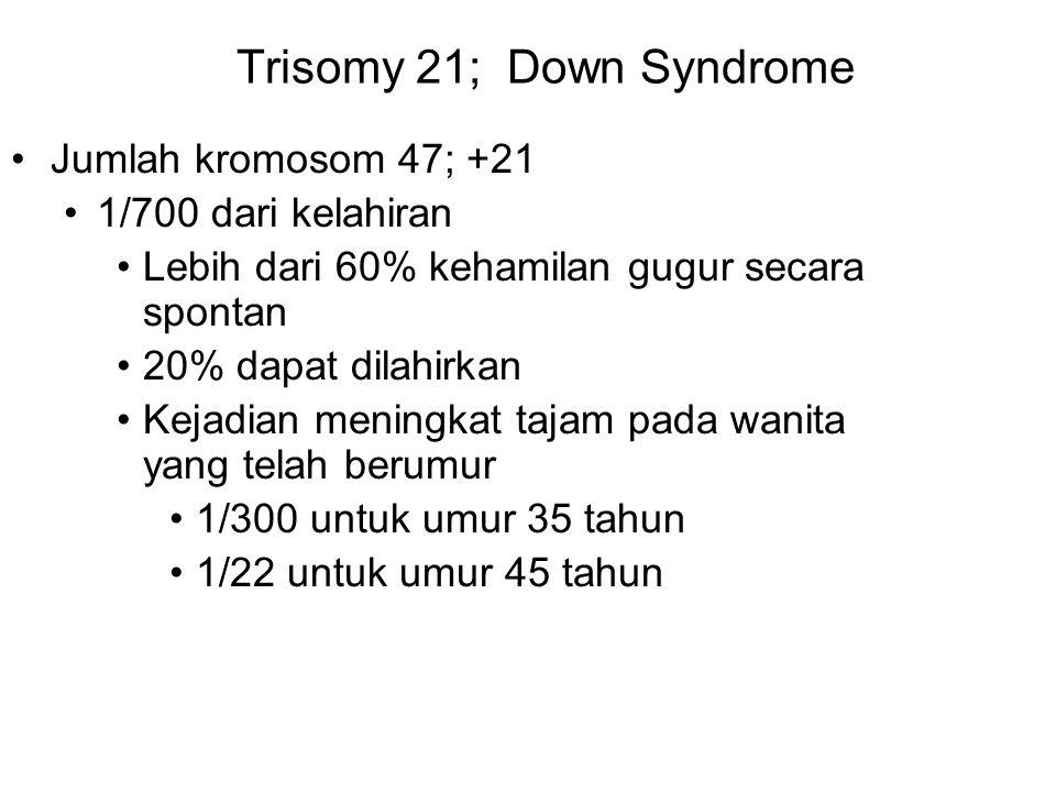 Trisomy 21; Down Syndrome Jumlah kromosom 47; +21 1/700 dari kelahiran Lebih dari 60% kehamilan gugur secara spontan 20% dapat dilahirkan Kejadian men