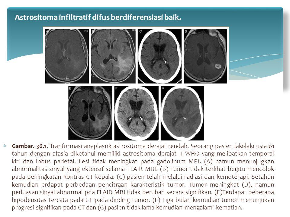  Gambar. 36.1. Tranformasi anaplasrik astrositoma derajat rendah. Seorang pasien laki-laki usia 61 tahun dengan afasia diketahui memiliki astrositoma