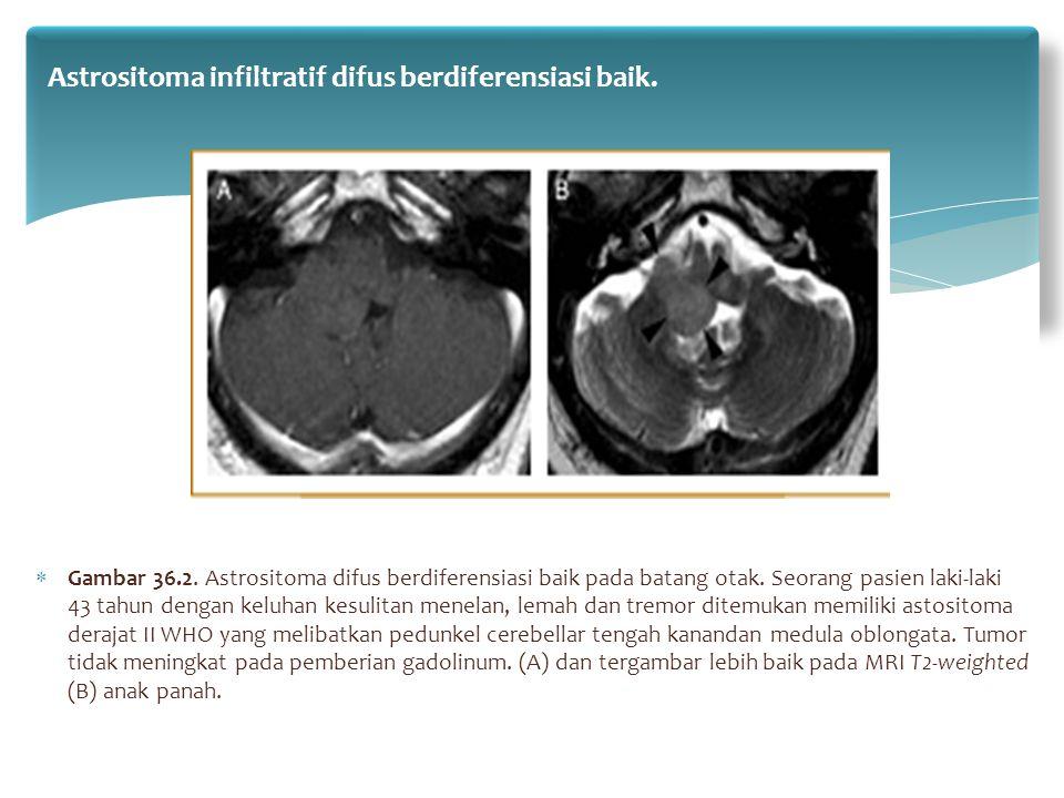  Gambar 36.2. Astrositoma difus berdiferensiasi baik pada batang otak. Seorang pasien laki-laki 43 tahun dengan keluhan kesulitan menelan, lemah dan
