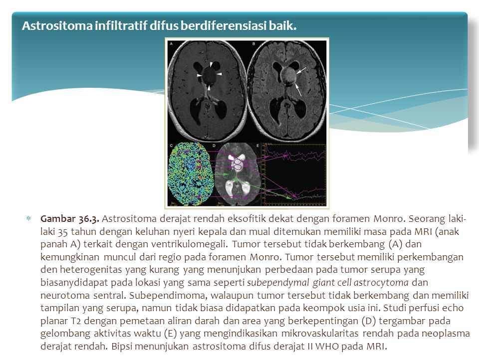  Gambar 36.3. Astrositoma derajat rendah eksofitik dekat dengan foramen Monro. Seorang laki- laki 35 tahun dengan keluhan nyeri kepala dan mual ditem