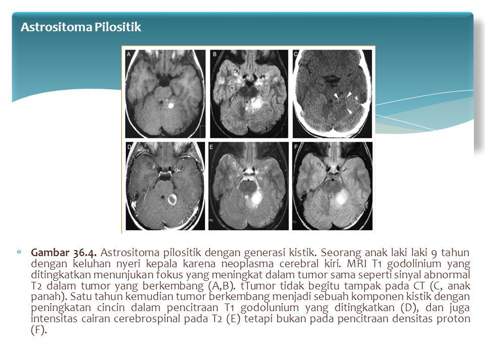  Gambar 36.4. Astrositoma pilositik dengan generasi kistik. Seorang anak laki laki 9 tahun dengan keluhan nyeri kepala karena neoplasma cerebral kiri