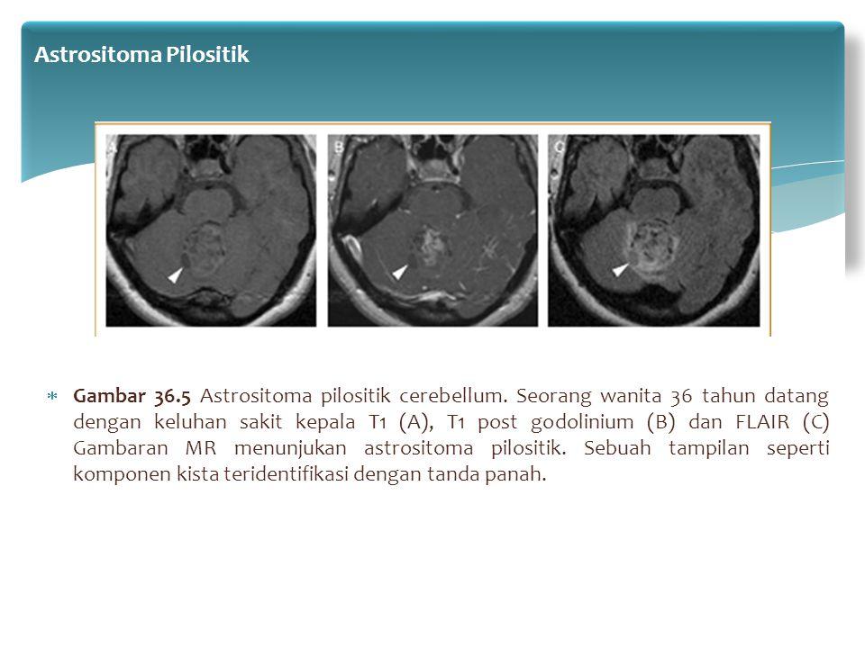  Gambar 36.5 Astrositoma pilositik cerebellum. Seorang wanita 36 tahun datang dengan keluhan sakit kepala T1 (A), T1 post godolinium (B) dan FLAIR (C