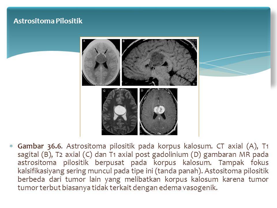  Gambar 36.6. Astrositoma pilositik pada korpus kalosum. CT axial (A), T1 sagital (B), T2 axial (C) dan T1 axial post gadolinium (D) gambaran MR pada