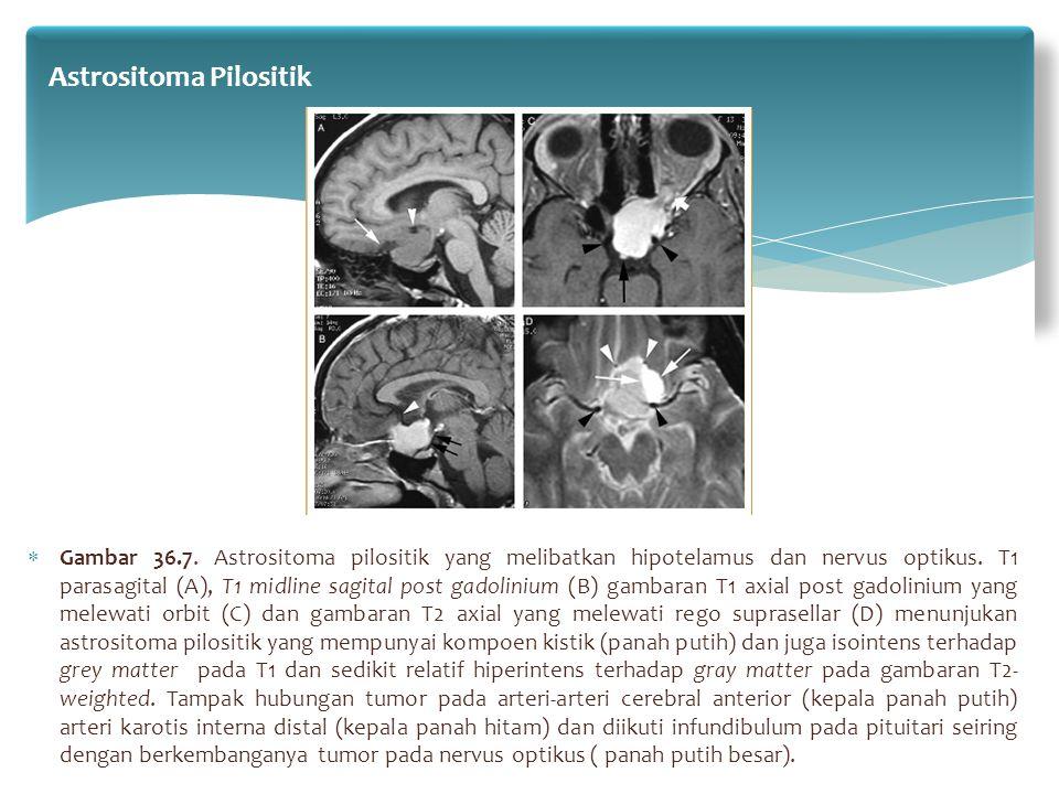  Gambar 36.7. Astrositoma pilositik yang melibatkan hipotelamus dan nervus optikus. T1 parasagital (A), T1 midline sagital post gadolinium (B) gambar