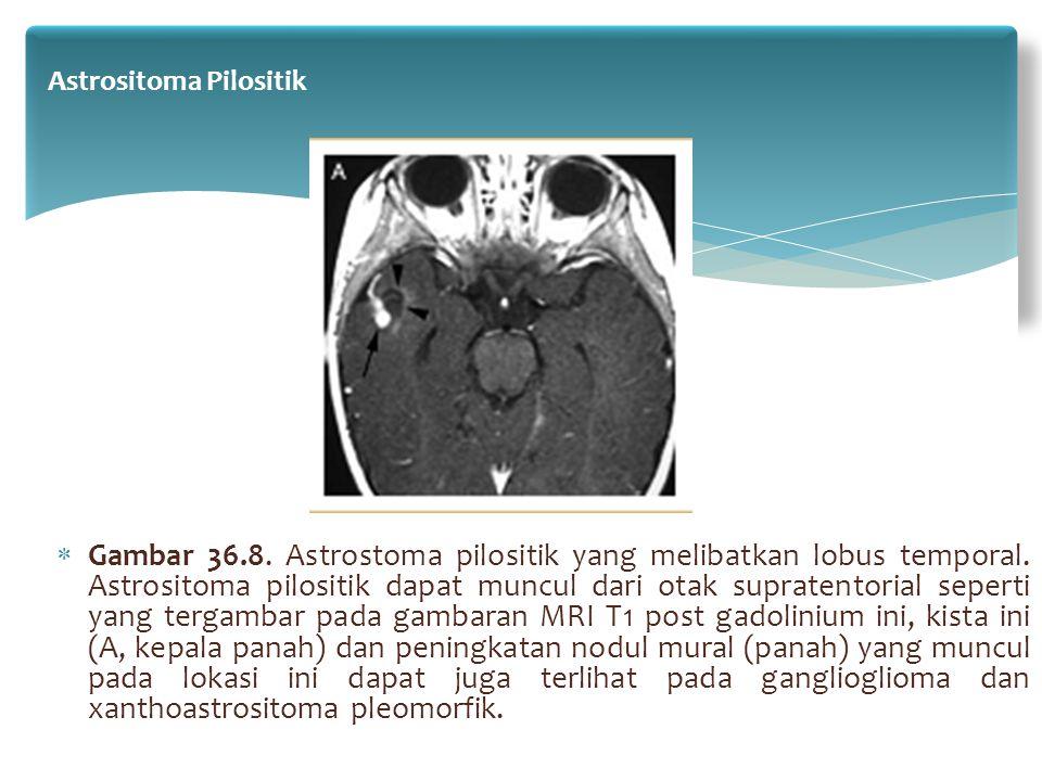  Gambar 36.8. Astrostoma pilositik yang melibatkan lobus temporal. Astrositoma pilositik dapat muncul dari otak supratentorial seperti yang tergambar