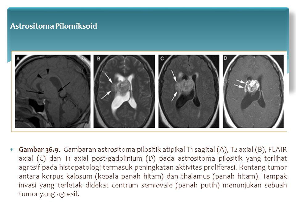  Gambar 36.9. Gambaran astrositoma pilositik atipikal T1 sagital (A), T2 axial (B), FLAIR axial (C) dan T1 axial post-gadolinium (D) pada astrositoma