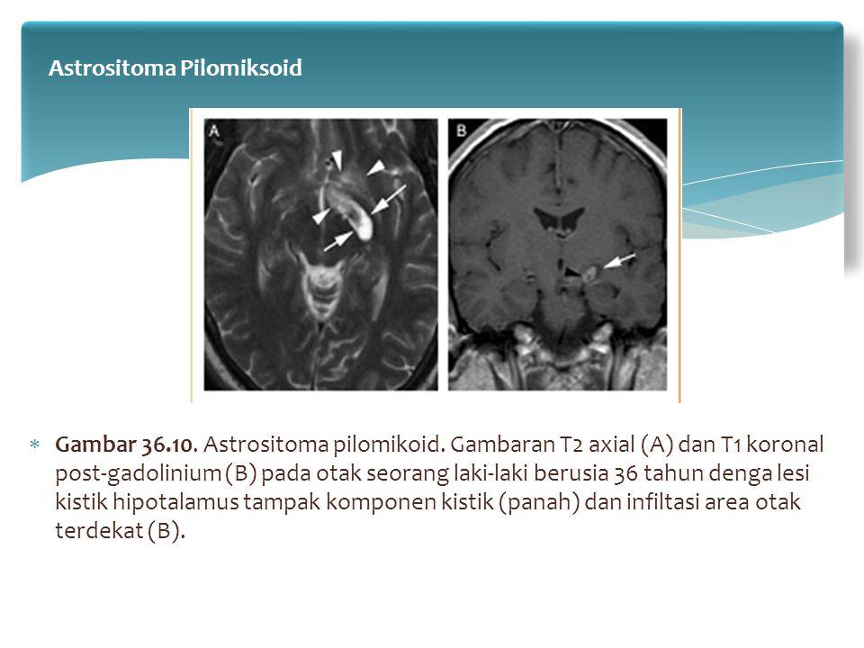  Gambar 36.10. Astrositoma pilomikoid. Gambaran T2 axial (A) dan T1 koronal post-gadolinium (B) pada otak seorang laki-laki berusia 36 tahun denga le