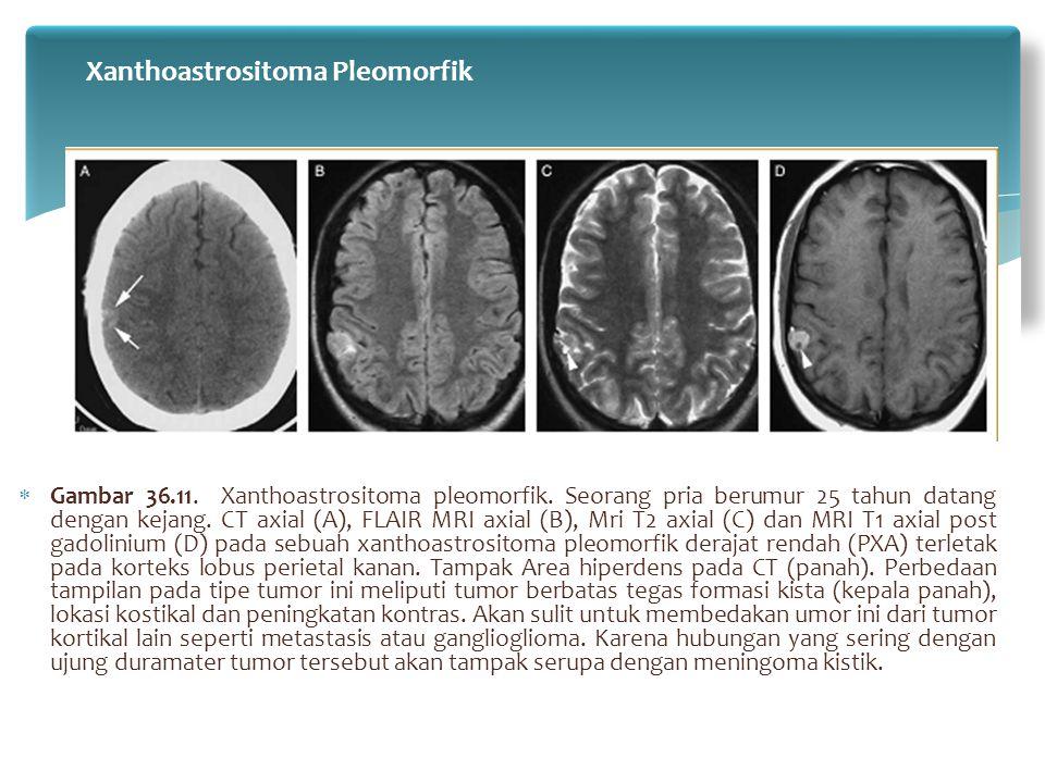  Gambar 36.11. Xanthoastrositoma pleomorfik. Seorang pria berumur 25 tahun datang dengan kejang. CT axial (A), FLAIR MRI axial (B), Mri T2 axial (C)