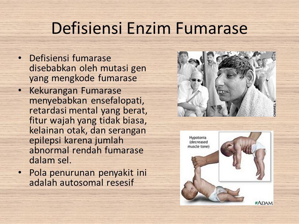 Defisiensi Enzim Fumarase Defisiensi fumarase disebabkan oleh mutasi gen yang mengkode fumarase Kekurangan Fumarase menyebabkan ensefalopati, retardas
