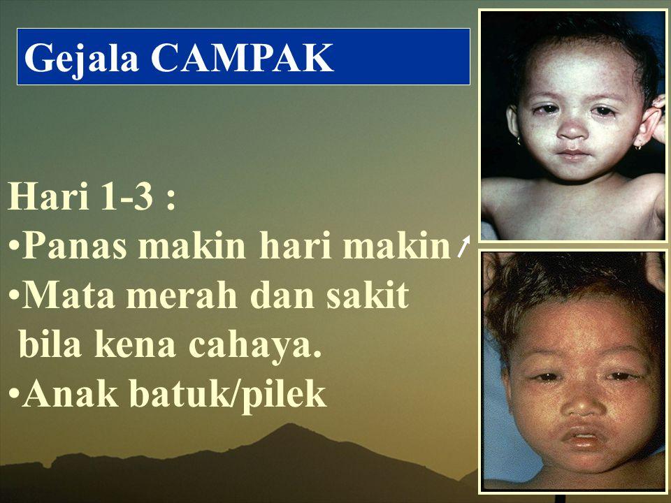 Gejala CAMPAK Hari 1-3 : Panas makin hari makin Mata merah dan sakit bila kena cahaya. Anak batuk/pilek