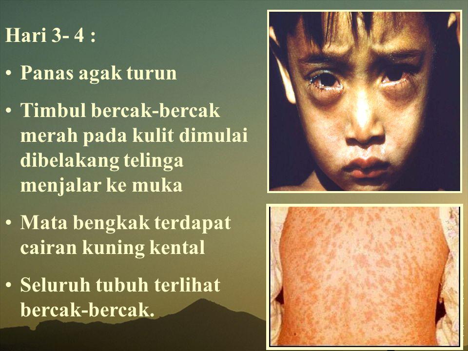 Hari 3- 4 : Panas agak turun Timbul bercak-bercak merah pada kulit dimulai dibelakang telinga menjalar ke muka Mata bengkak terdapat cairan kuning ken