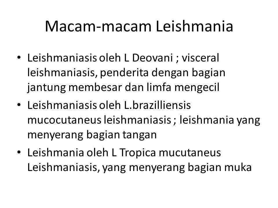 Macam-macam Leishmania Leishmaniasis oleh L Deovani ; visceral leishmaniasis, penderita dengan bagian jantung membesar dan limfa mengecil Leishmaniasi