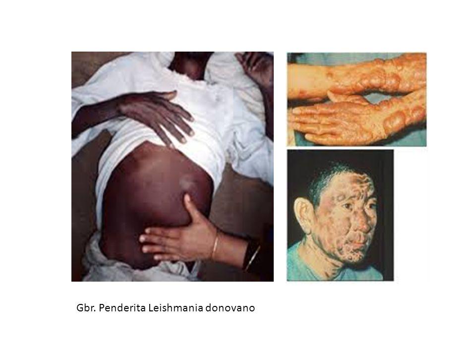 Gbr. Penderita Leishmania donovano