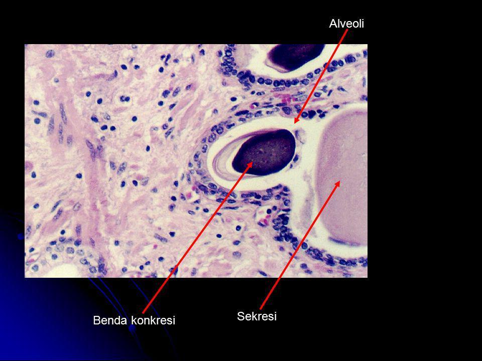 Benda konkresi Sekresi Alveoli