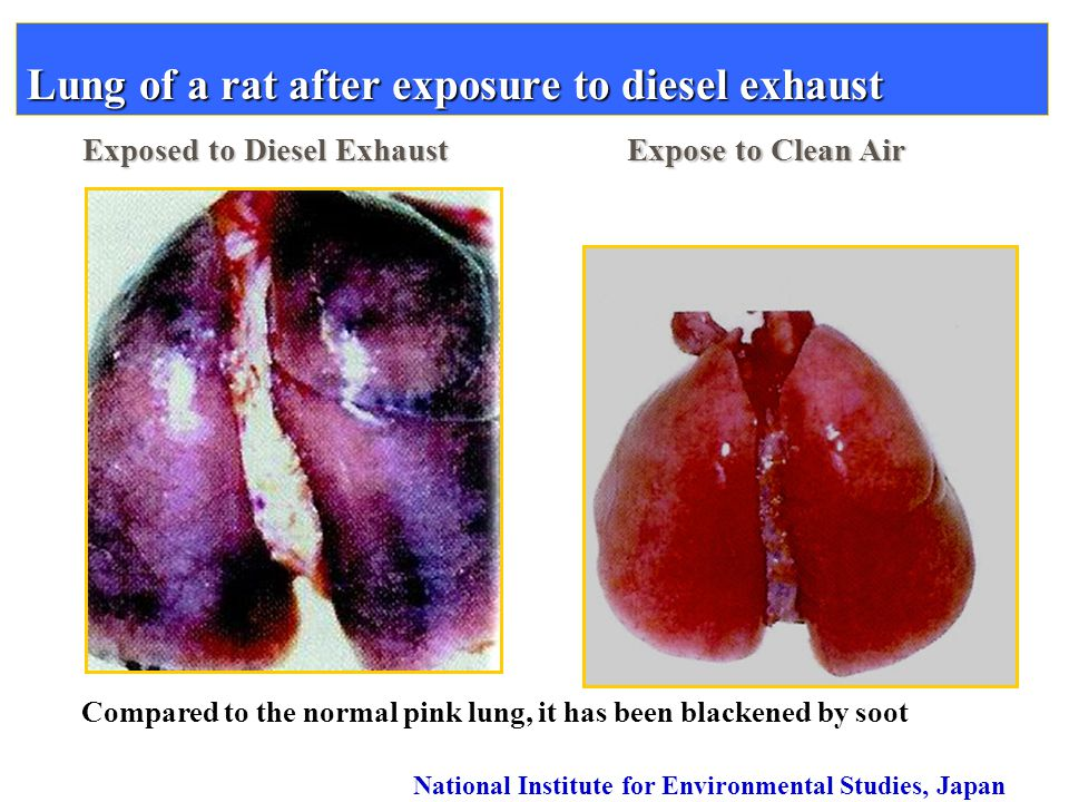 Lung of a rat after exposure to diesel exhaust Exposed to Diesel Exhaust Expose to Clean Air Compared to the normal pink lung, it has been blackened b