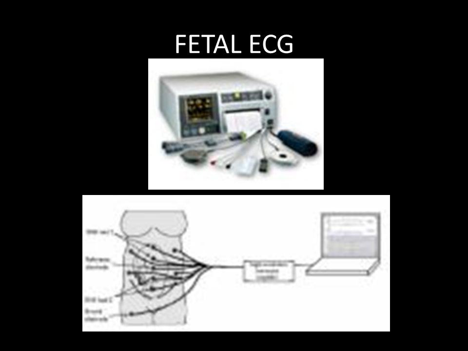 FETAL ECG