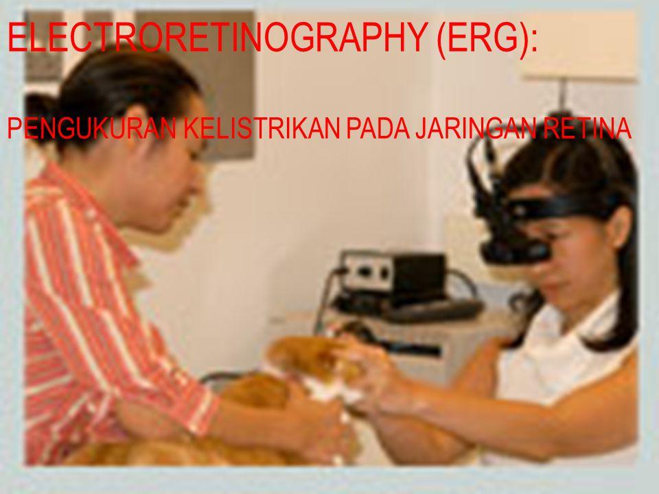 ELECTRORETINOGRAPHY (ERG): PENGUKURAN KELISTRIKAN PADA JARINGAN RETINA